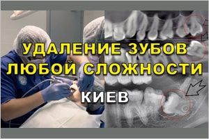 Нужно ли удалять зубы мудрости?
