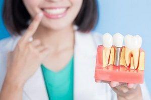 Правильный уход после имплантации зубов