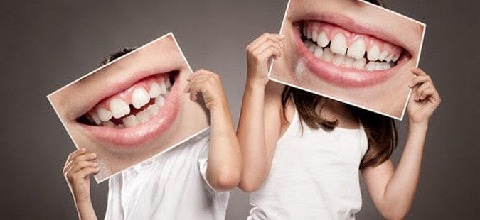 здоровые зубы детей