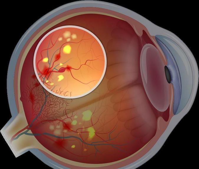 Поражение сетчатки глаза лечение