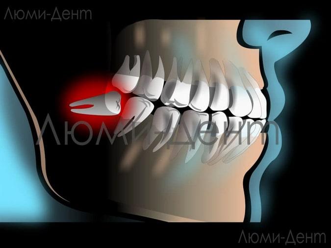 неправильное расположение зуба мудрости