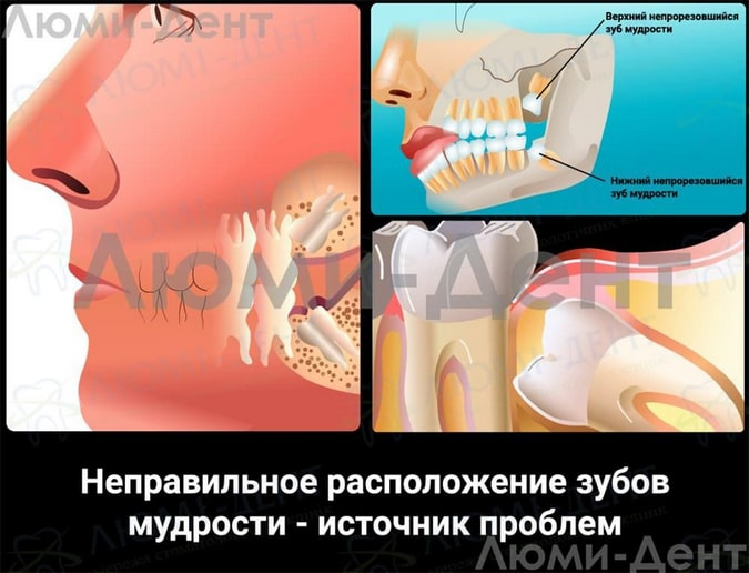 ретинированный зуб мудрости