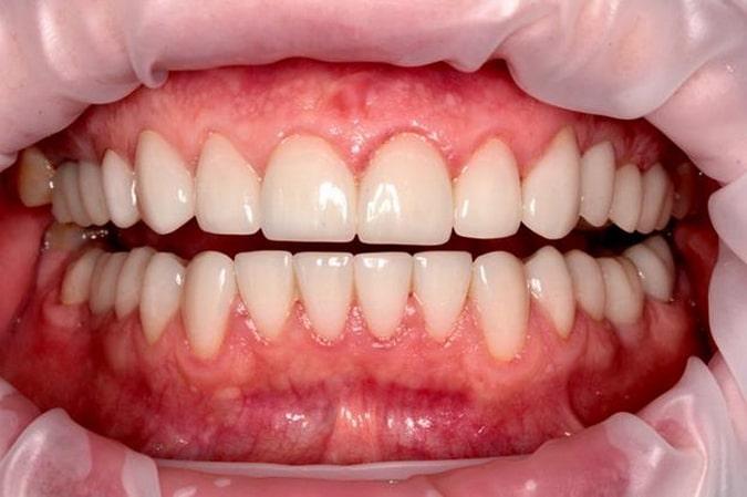Имплантация зубов верхней и нижней челюсти